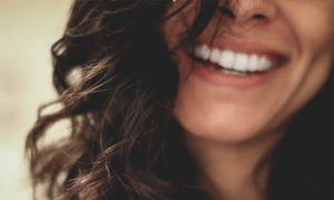floss-dental-clinic-laban-shillong-smile-teeth-white